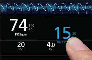 La presión arterial es 97 sobre 74