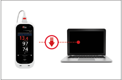 Masimo - Rad-67 - Download patient data wirelessly